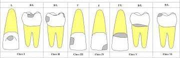 عکس, انواع کلاس پوسیدگی دندان به زبان ساده