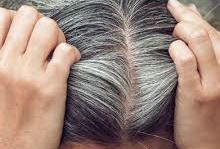 عکس, بهترین برندهای شامپوی رفع سفیدی مو