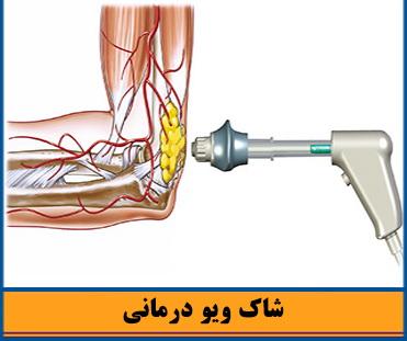 عکس, روش شاک ویو تراپی به جای جراحی و درمان سنگ کلیه