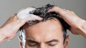 عکس, بهترین شامپوهای درمان ریزش موی ارثی