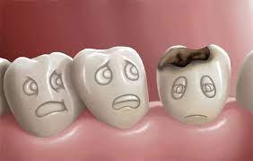 عکس, تمام دلایل پوسیدن دندان و بهترین درمان های آن