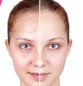 عکس, ماسک ویتامین ای برای لک صورت