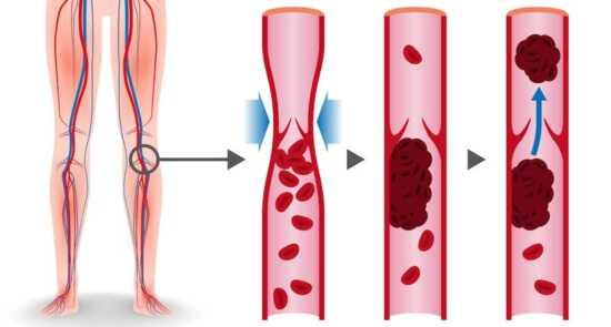 عکس, ترومبوز چیست درمان آن چگونه است و فاکتورهای خطر