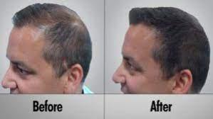 عکس, فیناستراید چطوری باعث رویش مو می شود و مدت زمان اثر آن