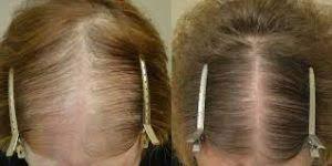 عکس, تاثیر فیناستراید در ریزش موی زنان بالای پنجاه سال