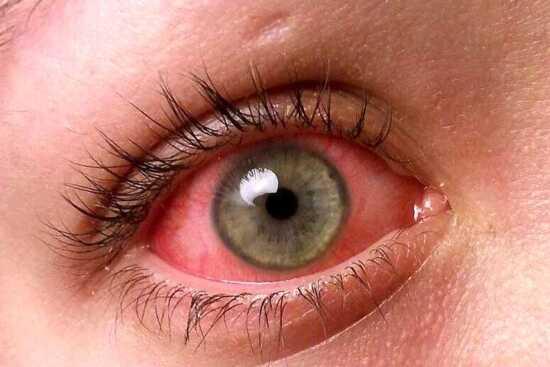 عکس, درمان قرمزی چشم ناشی از کرونا یا عوامل دیگر