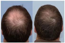عکس, فیناستراید بهترین درمان ریزش موی ارثی است یا خیر